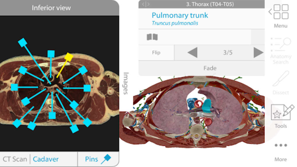 Human Anatomy Atlas 2018 Complete 3D Human Body for Android - Download