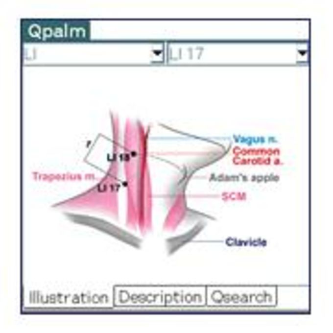 Qpalm - Acupuncture