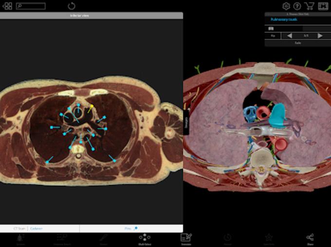 Human Anatomy Atlas 2018 Complete 3D Human Body