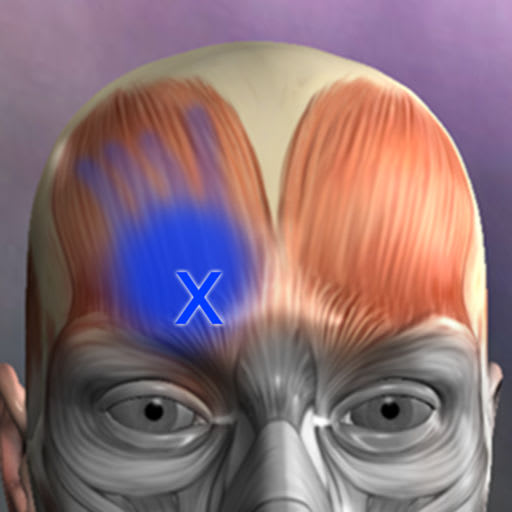 Muscle Trigger Points 4.3
