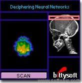 MindScanner