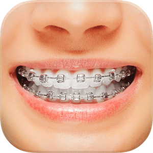 Braces Varies with device